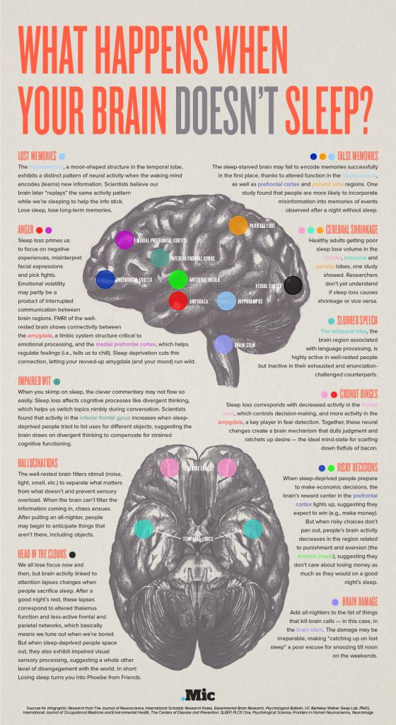 Utjecaji nedostatka sna na naš mozak. Preuzeto sa mic.com